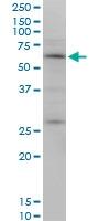 H00092736-M10 - Otopetrin-2