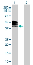 H00093650-B01 - ACPT / Testicular acid phosphatase
