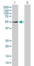H00113457-B01P - alpha Tubulin / TUBA3C / TUBA2