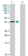 H00116519-B01P - Apolipoprotein A V / ApoA5