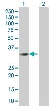 H00118980-B01 - Sideroflexin-2 (SFXN2)