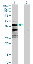 H00118980-B01P - Sideroflexin-2 (SFXN2)