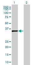 H00118980-B02 - Sideroflexin-2 (SFXN2)