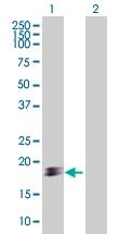 H00124460-B01 - Sorting nexin-20 (SNX20)
