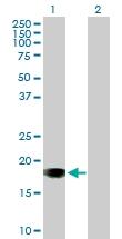 H00124460-B01P - Sorting nexin-20 (SNX20)