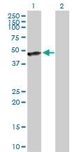 H00125972-D01P - Calreticulin-3