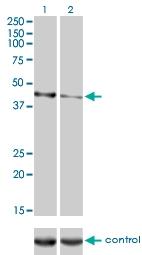 H00125972-M01 - Calreticulin-3