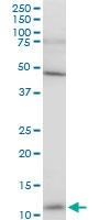 H00127124-A01 - ATP6V1G3