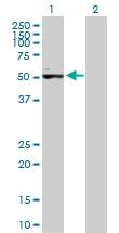 H00130399-B01P - Activin receptor type 1C / ACVR1C