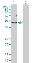 H00130399-D01P - Activin receptor type 1C / ACVR1C