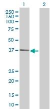 H00130589-B01 - Aldose 1-epimerase