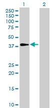 H00130589-B01P - Aldose 1-epimerase