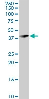 H00140432-D01 - RNF113B