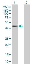 H00140432-D01P - RNF113B