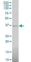 H00140578-A01 - Chondrolectin