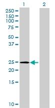 H00144321-B01 - GLIPR1-like protein 2