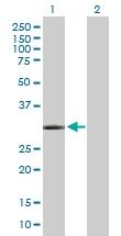 H00145258-B01P - Homeobox protein goosecoid / GSC