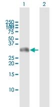 H00145258-D01 - Homeobox protein goosecoid / GSC