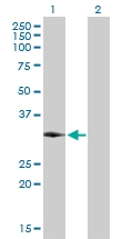 H00145258-D01P - Homeobox protein goosecoid / GSC