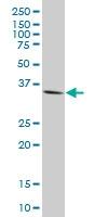 H00145258-M17 - Homeobox protein goosecoid / GSC