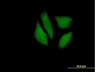 H00145553-B01P - MDP1