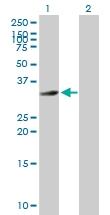 H00148738-B01P - HFE2 / Hemojuvelin