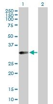 H00148738-D01P - HFE2 / Hemojuvelin