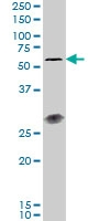 H00149233-M01 - Interleukin-23 receptor / IL23R