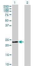 H00150365-B01 - Meiosis inhibitor protein 1