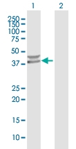 H00152926-B01P - Protein phosphatase 1K / PPM1K