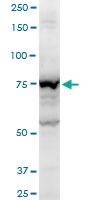 H00154796-A01 - Angiomotin