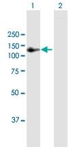 H00154810-B01P - Angiomotin-like protein 1 / AMOTL1