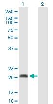H00163688-D01P - Calmodulin-like protein 6