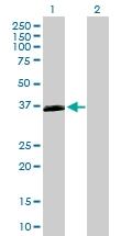 H00165140-B01P - Oxoeicosanoid receptor 1