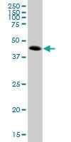 H00245973-B01P - ATP6V1C2
