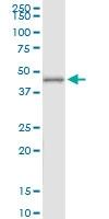 H00245973-D01 - ATP6V1C2