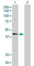 H00245973-D01P - ATP6V1C2