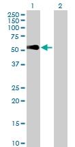 H00254122-B01P - Sorting nexin-32