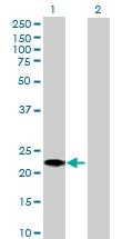 H00256710-B03 - GLIPR1-like protein 1