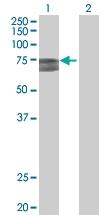 H00257364-B01 - Sorting nexin-33 (SNX33)