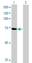 H00257364-B01P - Sorting nexin-33 (SNX33)