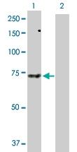 H00257364-D01P - Sorting nexin-33 (SNX33)