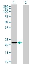 H00339451-B01 - Kelch-like protein 17