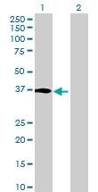 H00389434-B01 - Iodotyrosine dehalogenase 1 / IYD