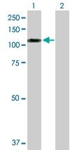 H00399979-D01P - Sorting nexin-19 (SNX19)