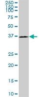 H00404037-M12 - Brain link protein 2 / BRAL2