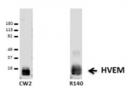 HA267-100 - TNFRSF14 / HVEM