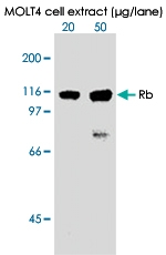 MAB0002 - Retinoblastoma-associated protein / RB1