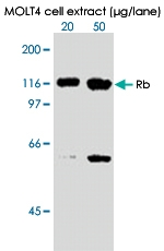 MAB0003 - Retinoblastoma-associated protein / RB1