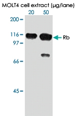 MAB0005 - Retinoblastoma-associated protein / RB1